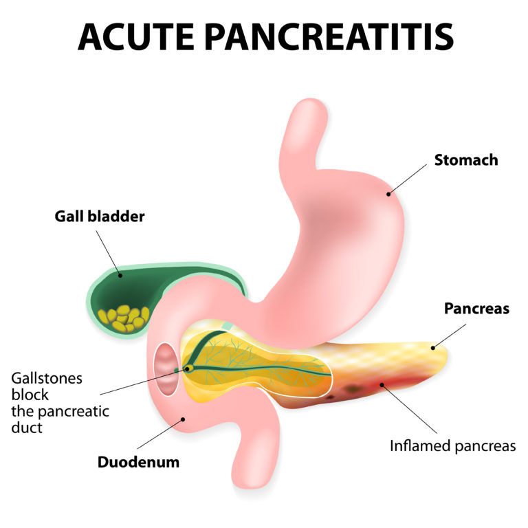 A gallstone lodged in the pancreatic duct resulting in pancreatitis is one of the common aetiologies