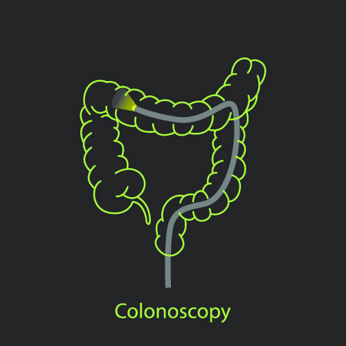 Colonoscopy performed to visualise the anatomy of the large colon