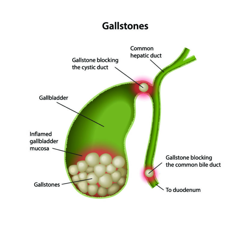The common locations of gallstones and where obstructions of the biliary tree occue