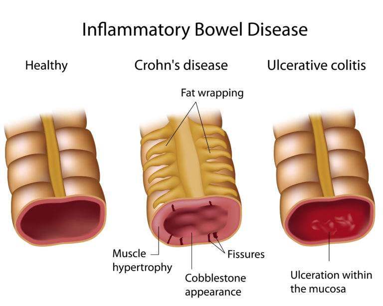 The different mucosal changes seen in inflammatory bowel disease (Crohn's disease and Ulcerative colitis) in comparison to a healthy bowel