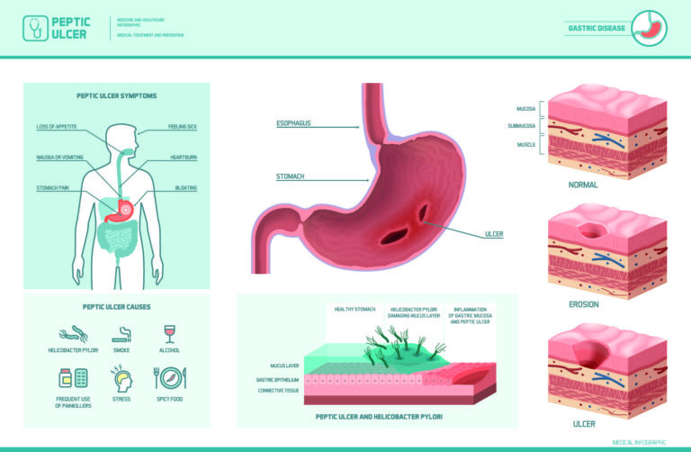 The histological appearance of Peptic Ulcer Disease