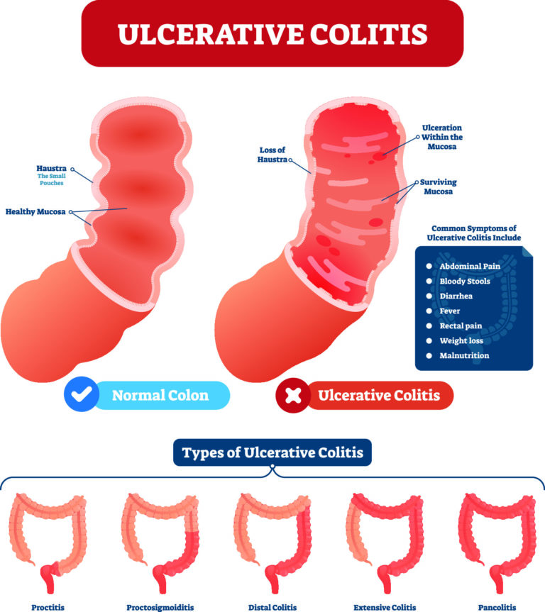 The common sites of large bowel involvement in Ulcerative Colitis and its presenting features