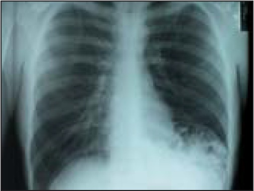 Chest radiograph of an obstructed Bochdalek hernia in an adult