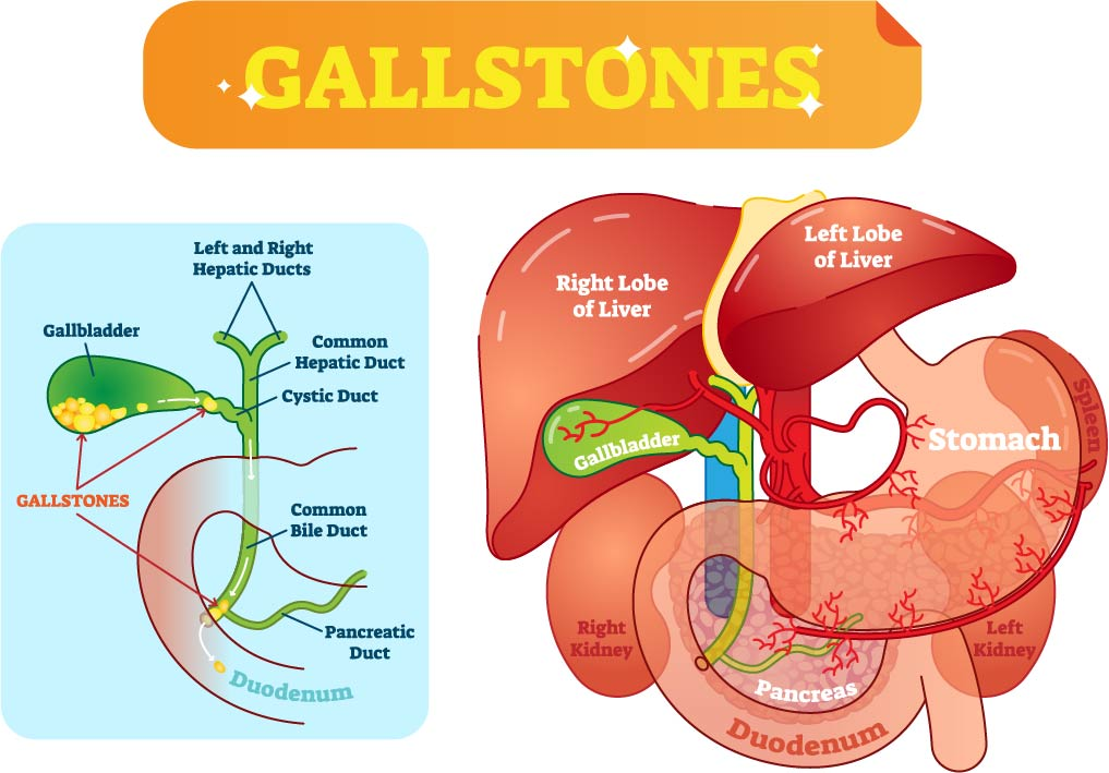 Anatomy of the biliary tree and the different locations where gallstones can lodge