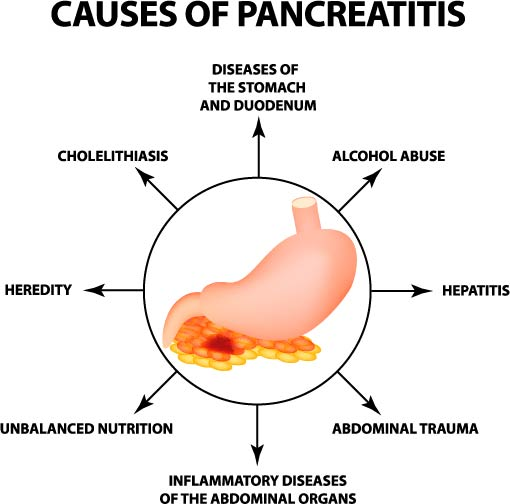 The different causes of pancreatitis
