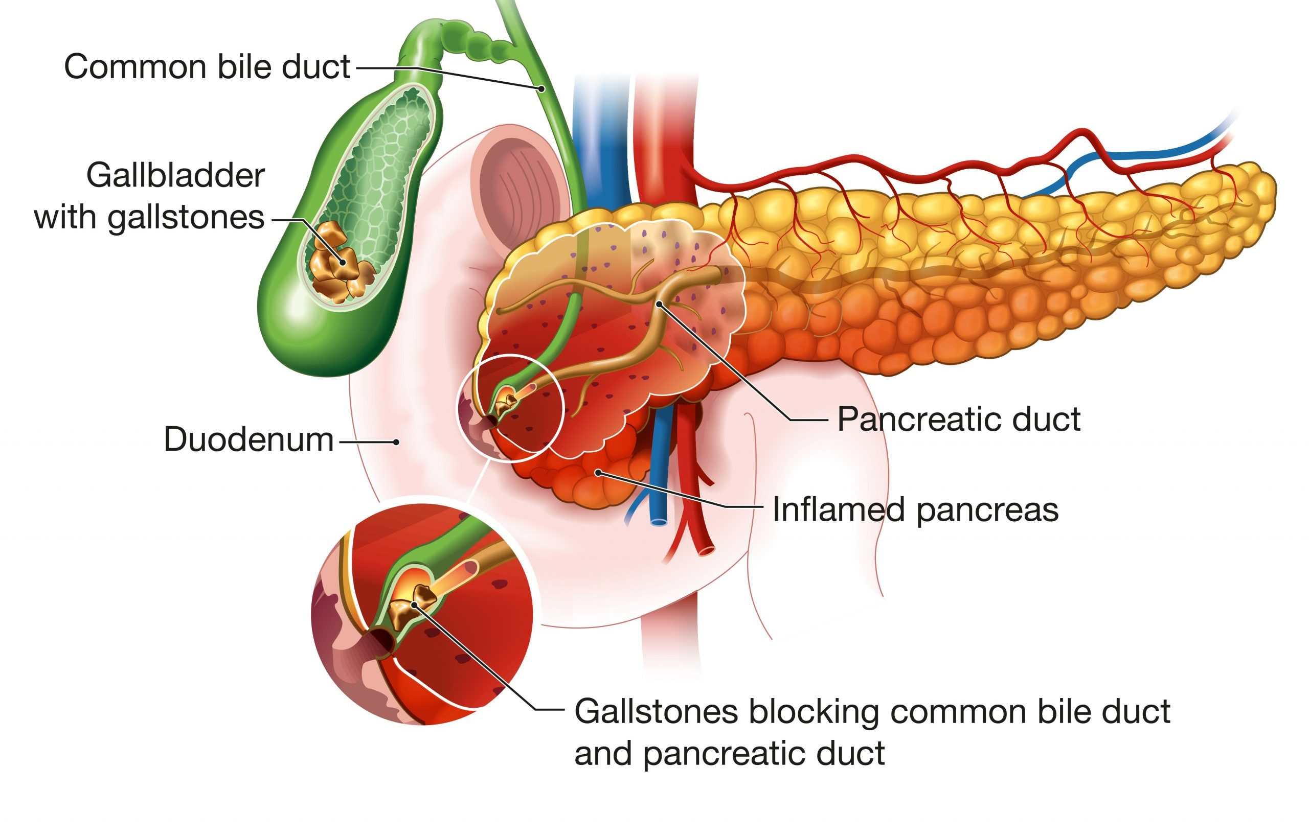 Obstruction of the pancreatic duct by a gallstone resulting in pancreatitis