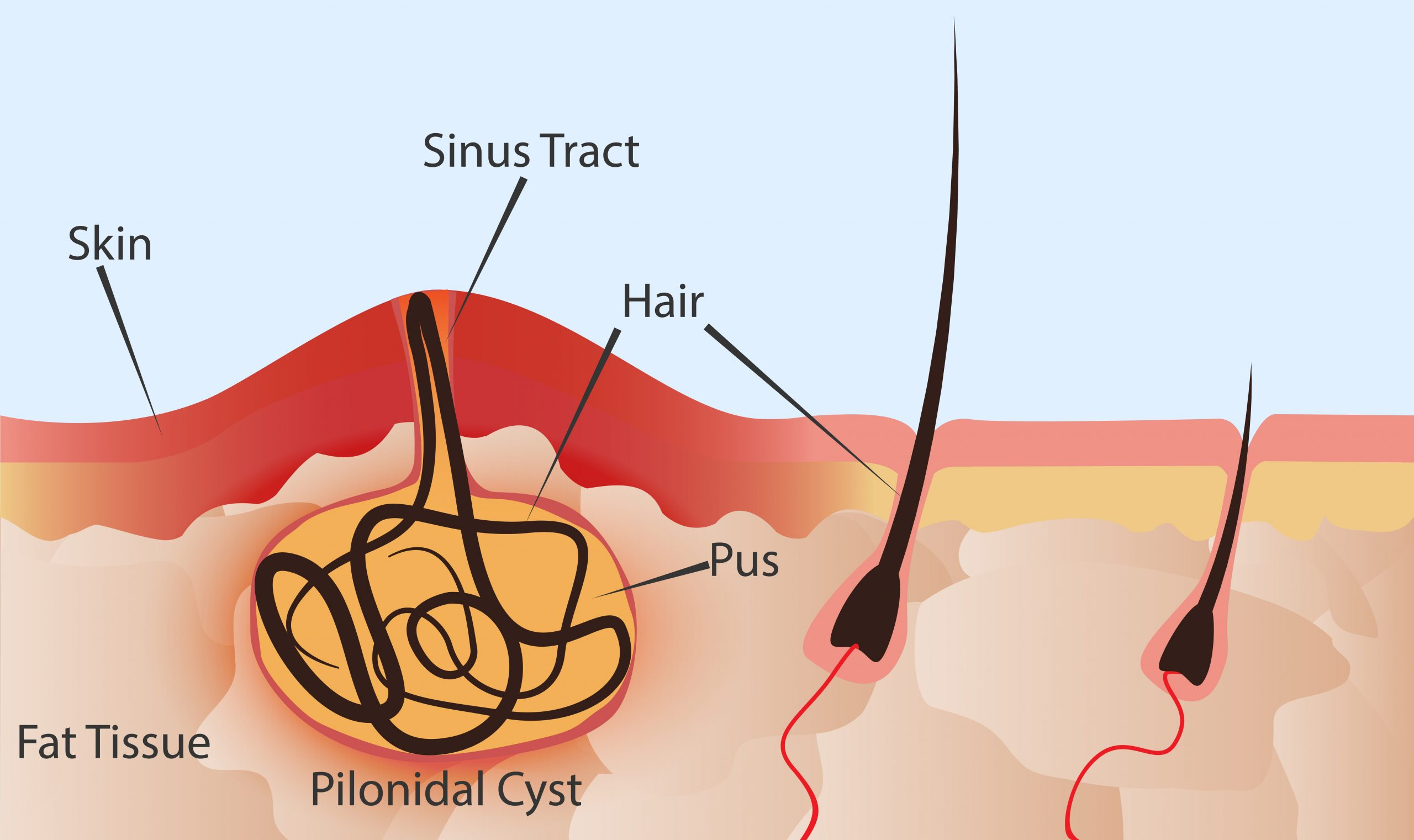 Anatomy of the skin and its relation to the development of a Pilonidal Cyst