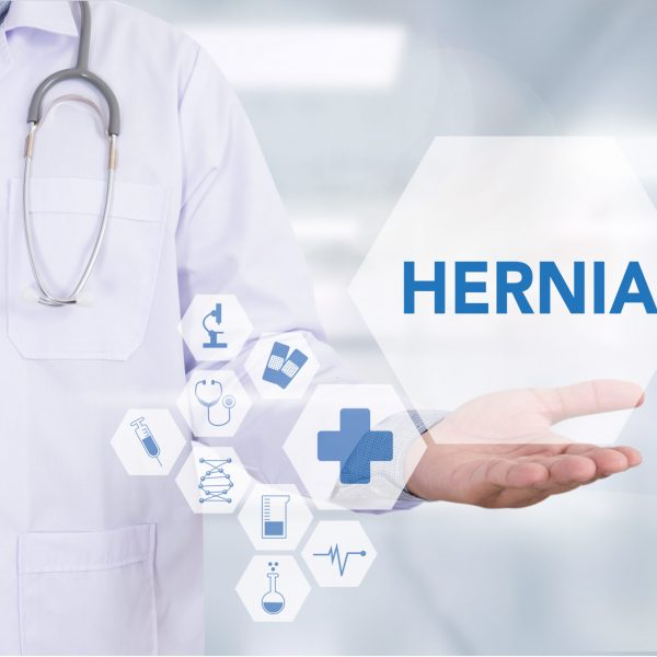 Doctor holding hernia icon